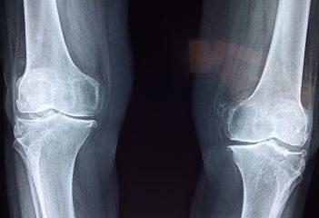 orthophédie