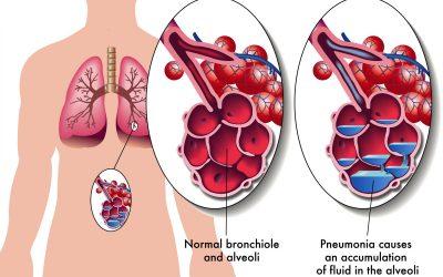 Pneumonie aiguë ou infection pulmonaire : symptômes, contagion et traitement