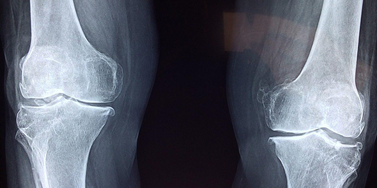 Définition d'orthophédie et le fonctionne en clinique du service orthopédie